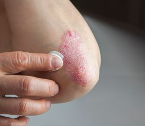 FDA approves Bryhali Lotion for psoriasis treatment: What to Know