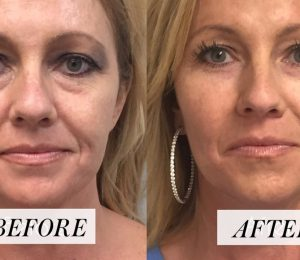 Our guide to Facial Fillers, from treatment options to recovery time