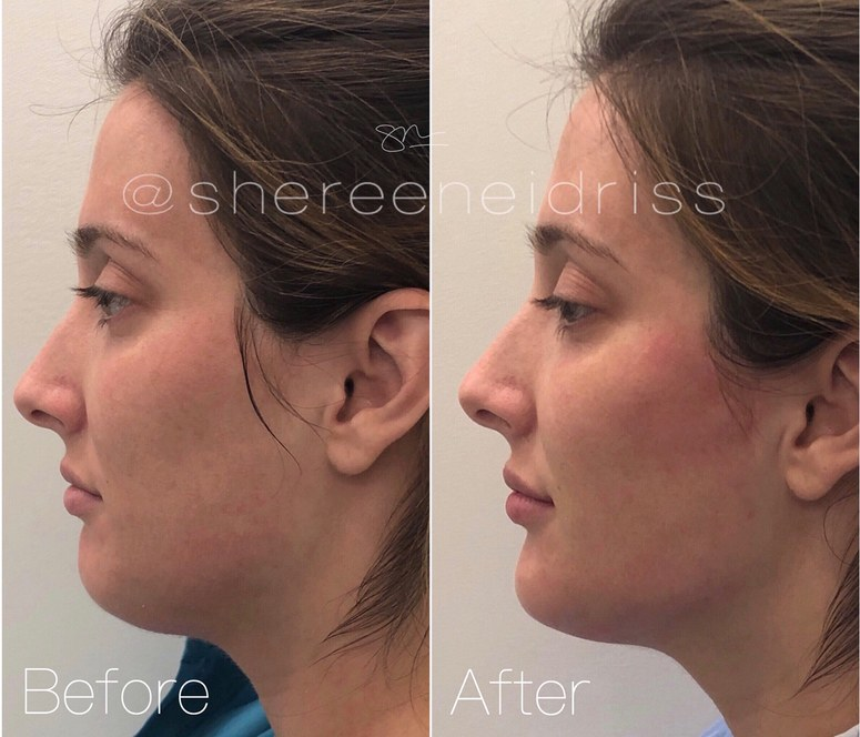 Preview the image of the woman after receiving facial fillers