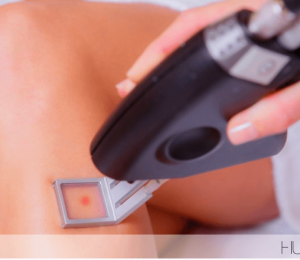 This new laser makes hair removal almost painless